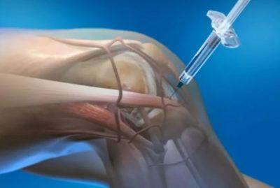 инъекции в коленный сустав