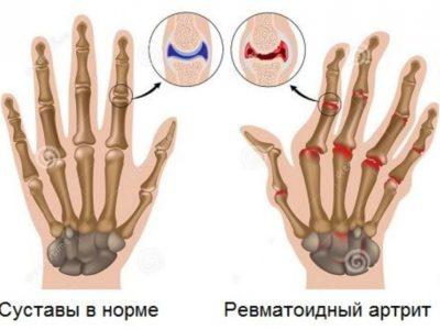 реватоидный артрит