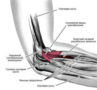 сухожилия локтевого сустава