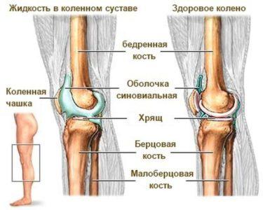 сравнение ноги с жидкостью в колене и без