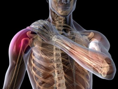плечевая боль