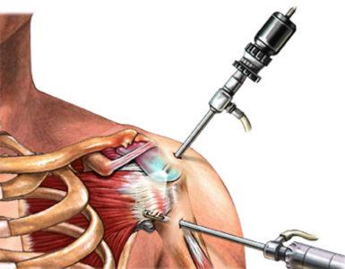схема артроскопии плеча