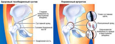 артрит ТБС
