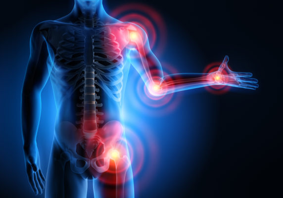 Изображение - Как проявляется воспаление суставов foto53w5646thl45645-1-572x400