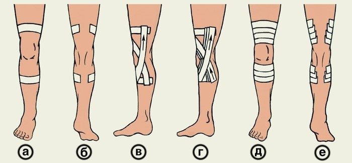 Методы тейпирования колена