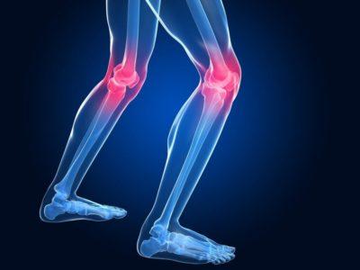 коленные суставы