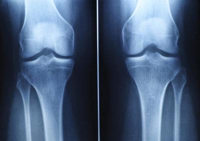 рентген коленей