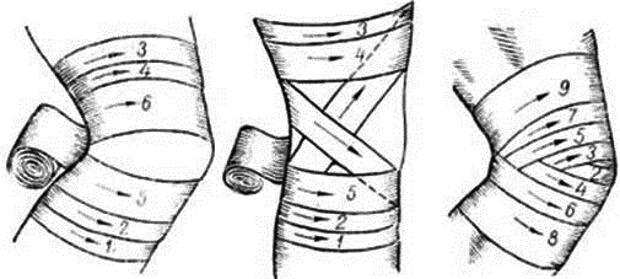 правила тейпирования колена