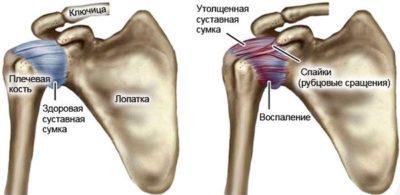 периартрит плеча