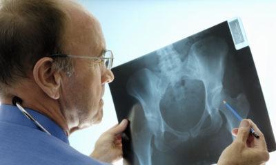 осмотр рентгена тазобедренного сустава