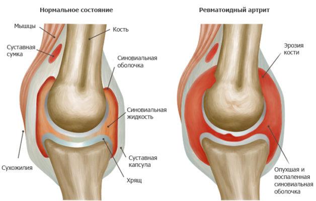 Изображение - Как проявляется воспаление суставов rev_artrit_1-628x400