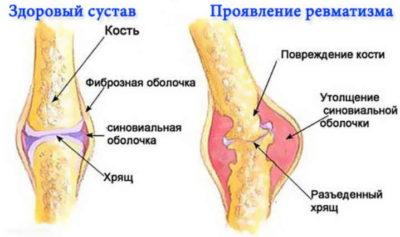 Изображение - Хроническое заболевание суставов revmatizm-1-400x237