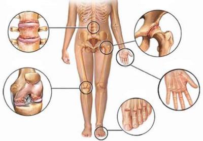 Изображение - Болезни суставов таблица revmatoeidis-arthritida-400x278