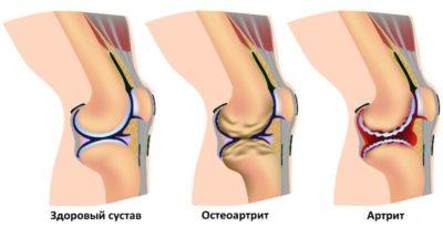 заболевания колена визуально