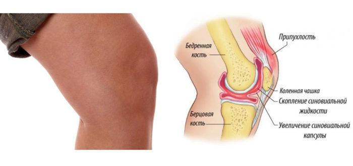 схематический рисунок больного колена