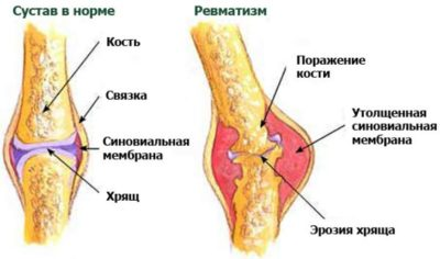 здоровый и больной сустав с ревматизмом