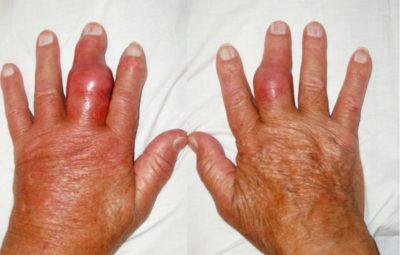 Изображение - Как проявляется воспаление суставов trieu-chung-cua-benh-gut-bieu-hien-benh-thuong-gap-lCBXW-1515570324_large-400x255