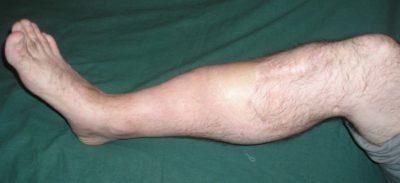 ложный сустав голени