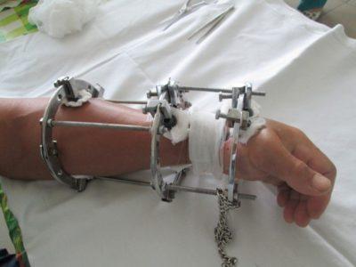 аппарат илизарова на руке