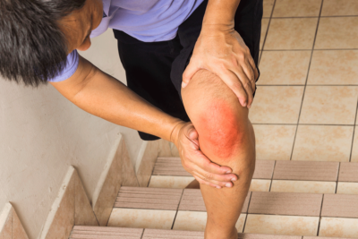 заболевание коленного сустава
