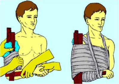 первая помощь при переломе плечевой кости