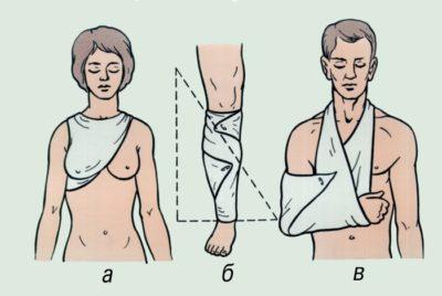 Изображение - Какие суставы надо иммобилизировать при переломе плеча 0207273w53w534506543wy66543-400x268