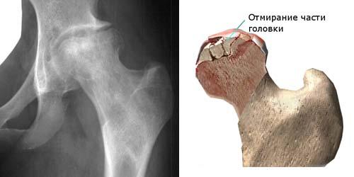 Рентгенограмма при асептическом некрозе