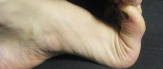 гипермобильность суставов пальцев ног